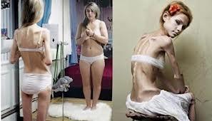 20140108122323-anorexia-2.jpg